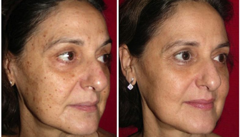 CO2RE B4 After Woman Facial